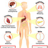 Symptoms of Vitamin D deficiency in Children.