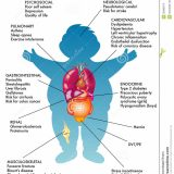 obesity childhood causes