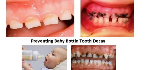 baby bottle tooth decay facts